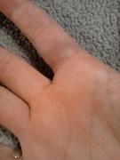 Hurt hand 1